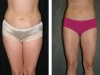 Body Contouring Front