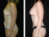 Abdominoplasty Side