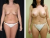 Abdominoplasty Front
